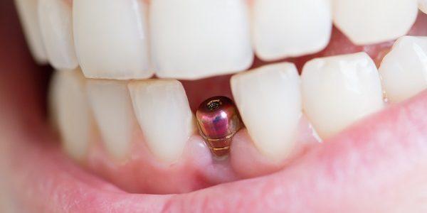 Ile kosztują implanty zębowe – sprawdź już dziś.