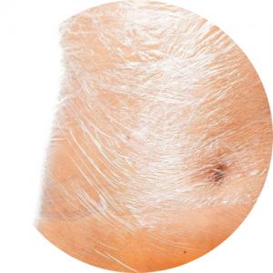 body wrapping na brzuchu
